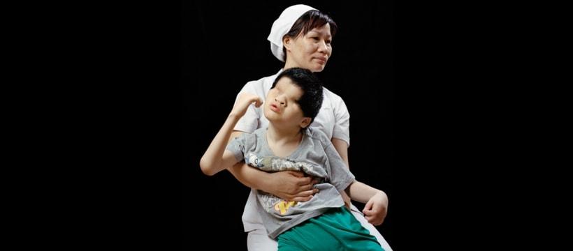 enfant sans yeux dans les bras dune infirmiere
