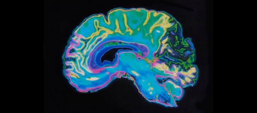 implant cerveau augmenté