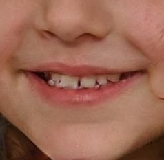 dentition de petite fille générée par ordinateur