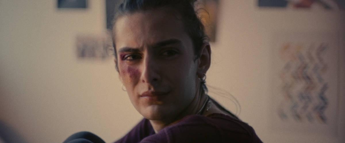 Une fille transgenre avec un bleu sur le visage