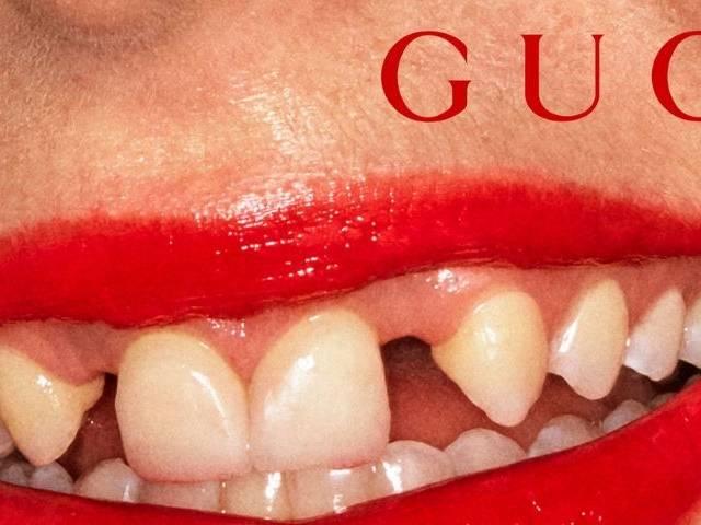 Une publicité Gucci présente un sourire aux dents écartées