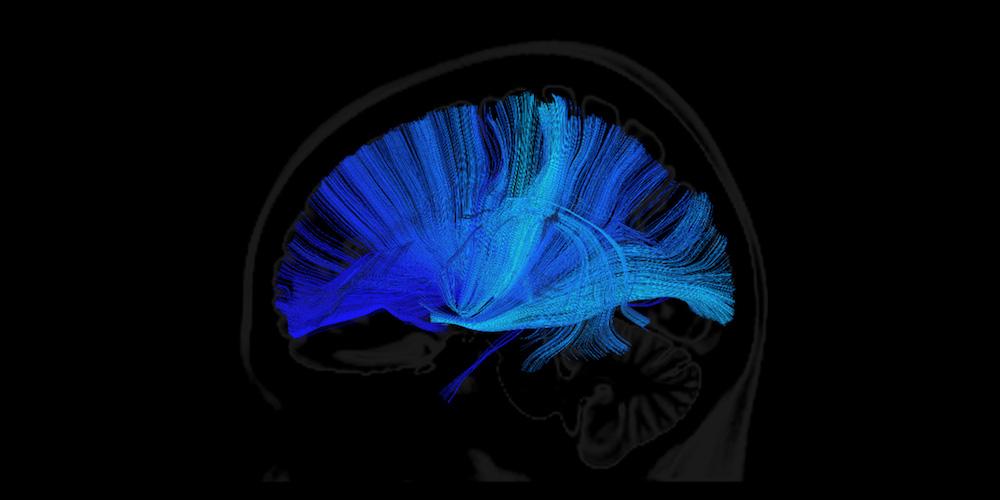 image bleue d'un cerveau