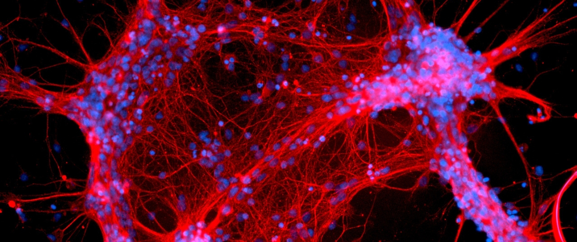 une image de neurones rouges